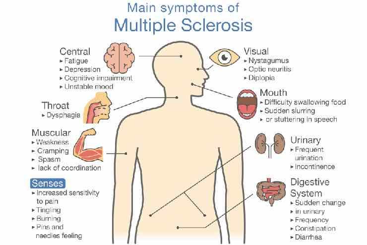Info graphic about MS symptoms