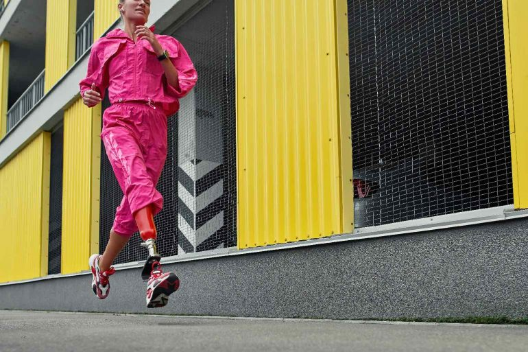 Young disabled sports woman with an artificial leg running along the street outdoors.